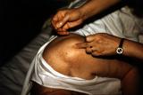 Akupunktur im LaoShan Zentrum